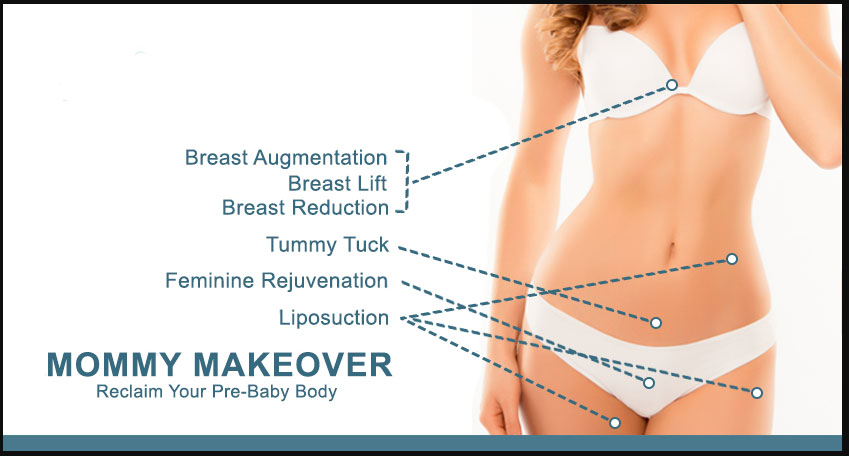 Mommy Makeover is a combination procedure that utilizes a variety of surgical procedures